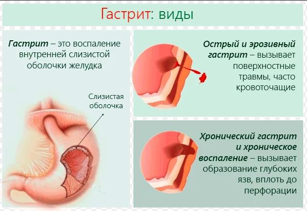 Диета №1 при язвенной болезни желудка и гастрите