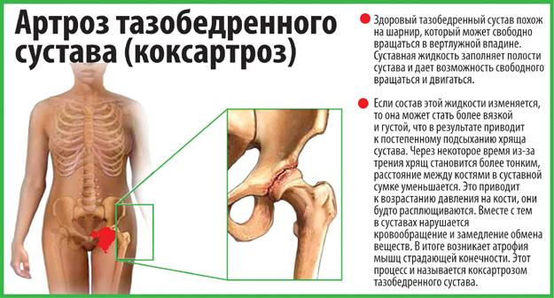 20 упражнений Бубновского - принципы гимнастики для здоровья